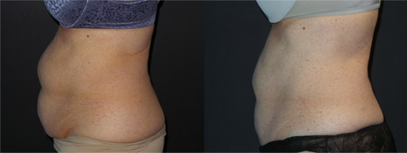 Reduce Fat Before & After CoolSculpting Abs