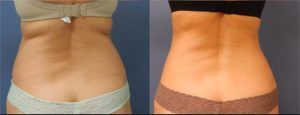 Reduce Fat Before & After CoolSculpting back