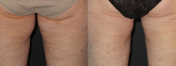 before and after coolsculpting treatment inner thighs
