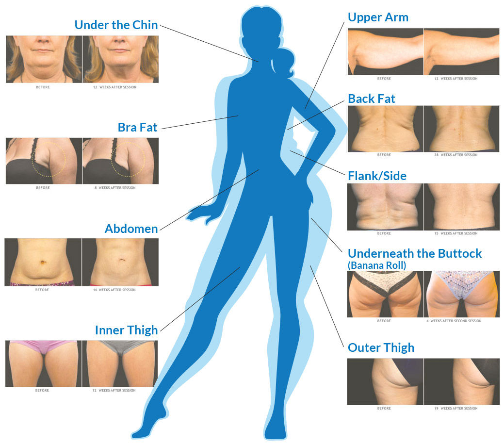 CoolSculpting Treatment Areas map for reducing fat