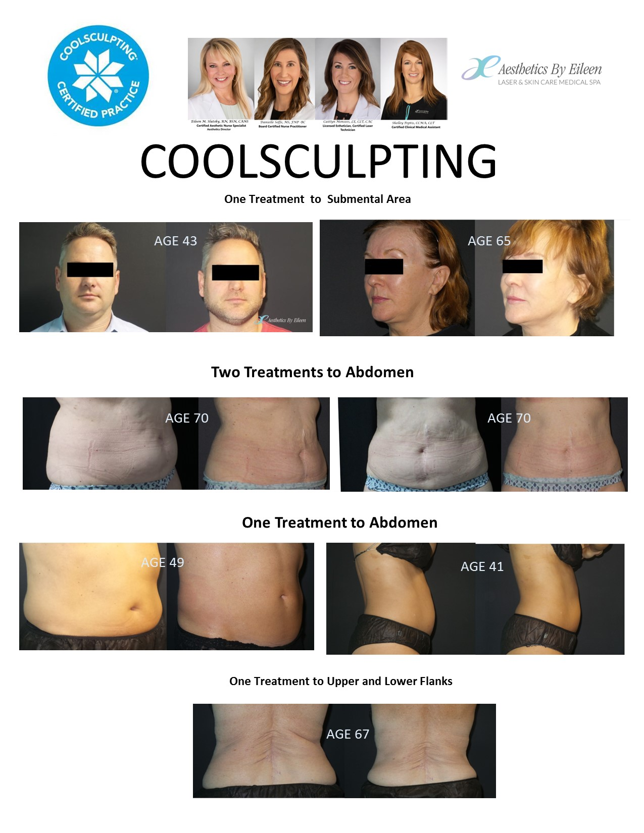 Real clients of Eileen's experience dramatic results from CoolSculpting